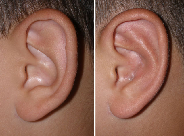 Protruding Ears Gallery Midlothian VA, Cosmetic Facial Surgery