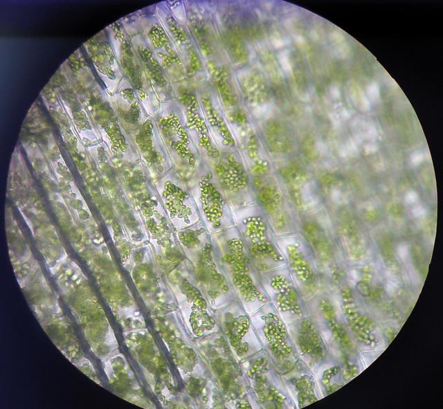 Elodea Cell 400x Elodea Plasmolysis 400x