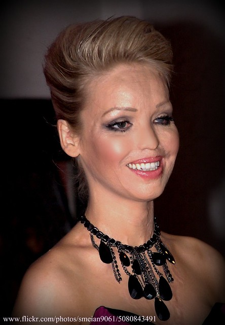 Latest On Katie Piper http://www.flickr.com/photos/smeian9061/5080843491/