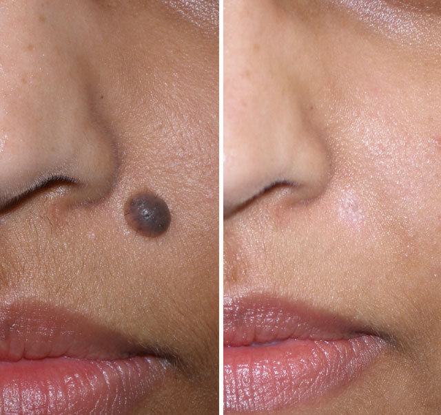 Raised facial moles