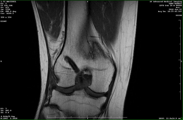 mri of my knee