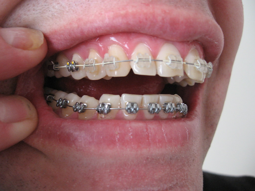 "Types of Braces"" class="