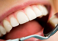 Invisalign Teeth Straightening Treatment