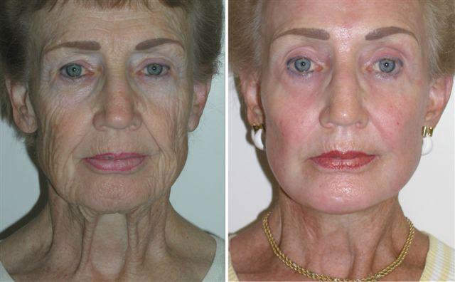 Co2 Laser Resurfacing Gallery Richmond Va Cosmetic