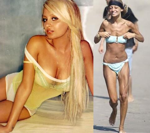 Transtorno Dismórfico Corporal: Nicole Richie - Anorexia