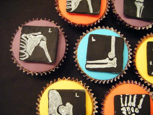 Cake Radiograph