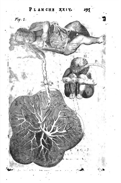 L 39 anatomie du corps humain avec ses maladies les for Interieur du corps humain image