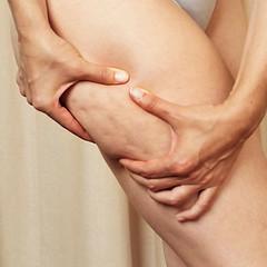 Cellulite: A common concern