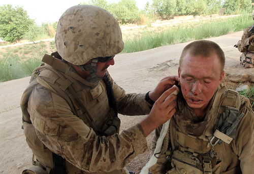 Corpsman cleans facial wounds after IED attack