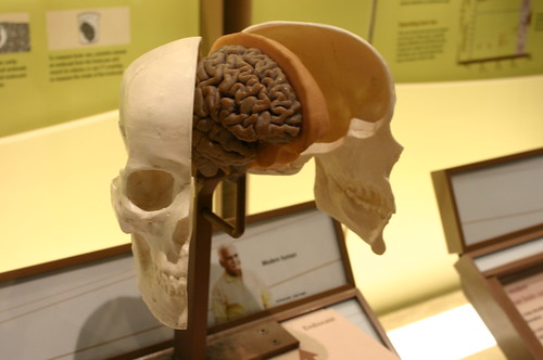 Skull, Brain, and Cranial Endocast
