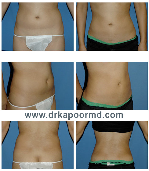 Liposuction prices adelaide letra