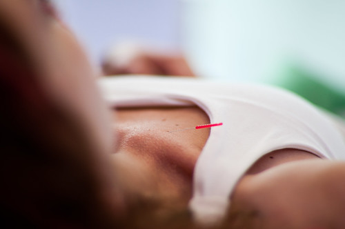 You can induce labor naturally! Acupuncture is one of the methods that worked for me!