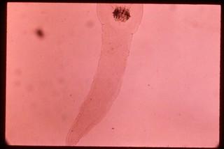 Proteocephalidae sp