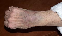 Right wrist hematoma