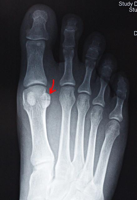 Sesamoid Bone