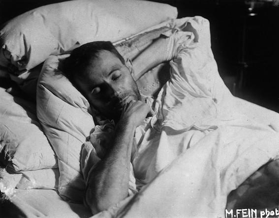 Egon Schiele auf Totenbett, by Martha Fein (1918)