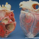 Human heart, bisected