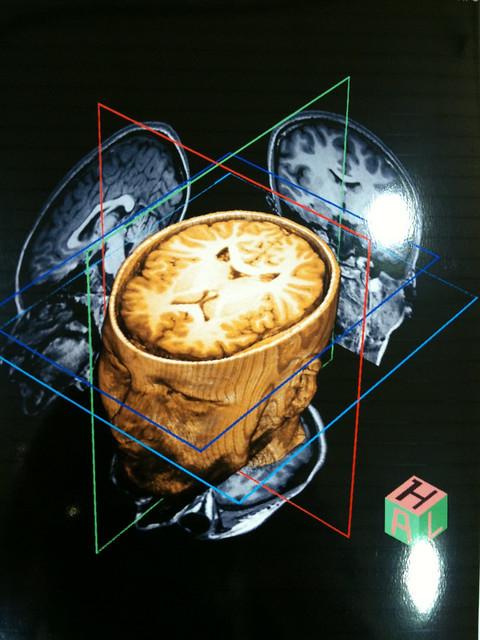 brain mri scan 3d - photo #12