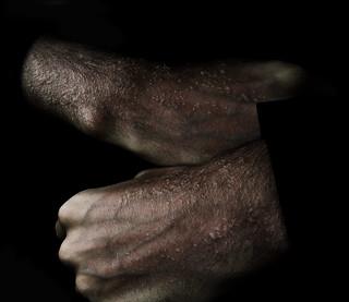 poparzone dłonie