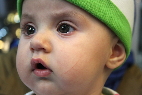 Iranian baby 'out of the woods' after heart surgery | The Columbian