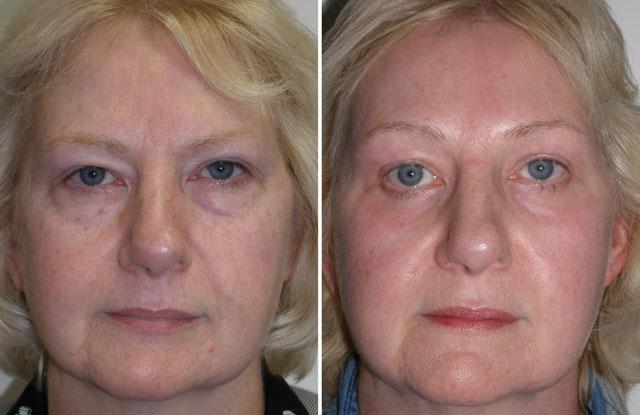 Laser facial plastic surgery
