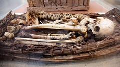 Mummy bones