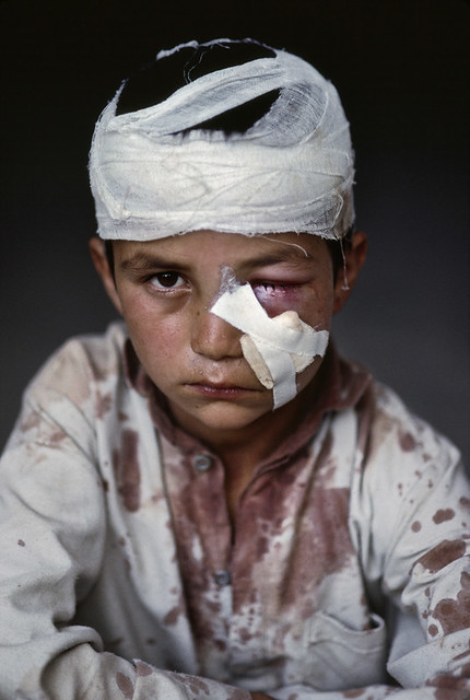 A young victim of a landmine placed by the Afghan army outside Pul i Khumri, north of Kabul, Afghanistan, 1992, by Steve McCurry 1992