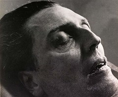 Alban Berg on his deathbed, by Trude Fleischmann 1935