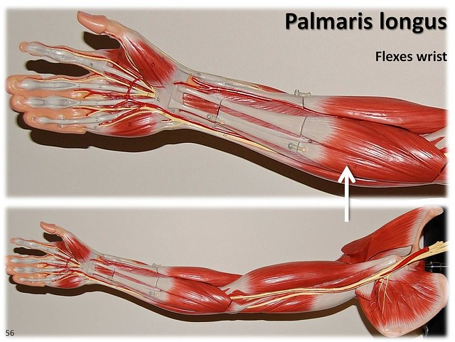 Palmaris longus - Muscles of the Upper Extremity Visual Atlas, page 56