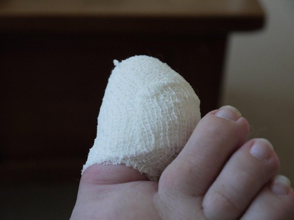 Day Thirty Eight - Sore Toe