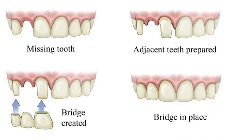 Best Dental Implants in India – Dental Implant India
