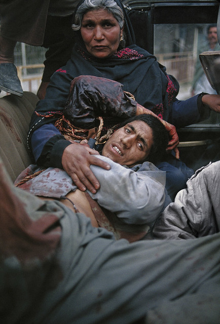 Wounded Civilian in Kabul Rocket attack, Kabul, Afghanistan, 1992, by Steve McCurry
