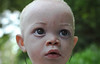 Beautiful child with albinism