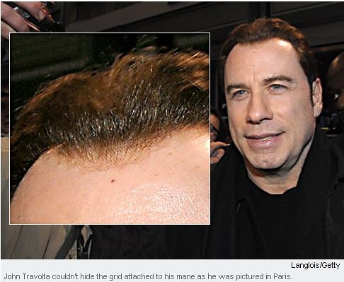 Hair Loss Treatment For Women Hair Transplant