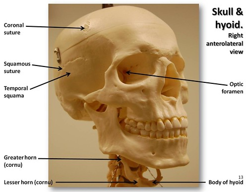 Skull, anterolateral view with labels - Axial Skeleton Visual Atlas, page 13