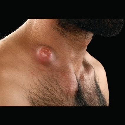 Mesenteric Lymphadenitis Workup: Laboratory Studies