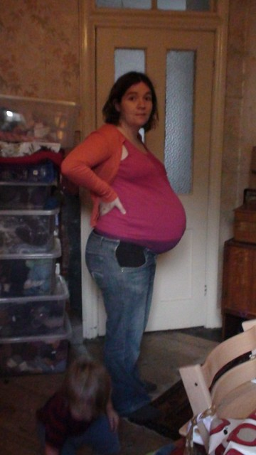 I'm only putting this photo up so you can see how huge the bump has become.