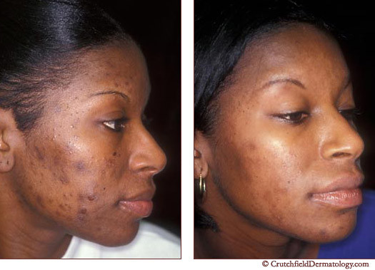 Pimple Care Best Acne Treatment For African American Skin