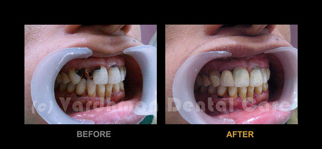 Front Teeth Repair: Case Of Ms. S.R._VDC