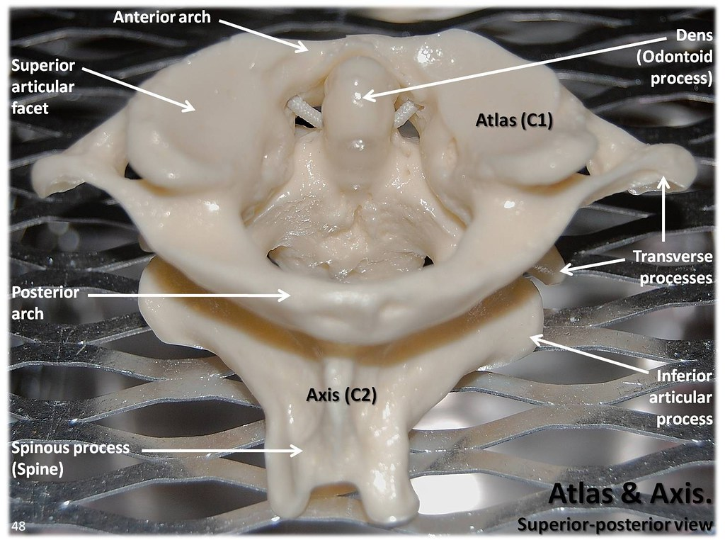 Atlas C1 and Axis C2 vertebrae, superior view with labels - Axial ...