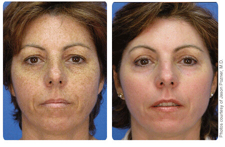 Photorejuvenation Bbl Treatment On Face 3 Before Amp After