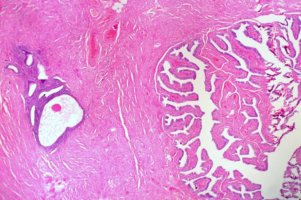 Endometriosis In Wall Of Fallopian Tube In A Hysterectomy Flickr