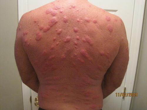 Image gallery silverfish bites for Fish allergy rash pictures