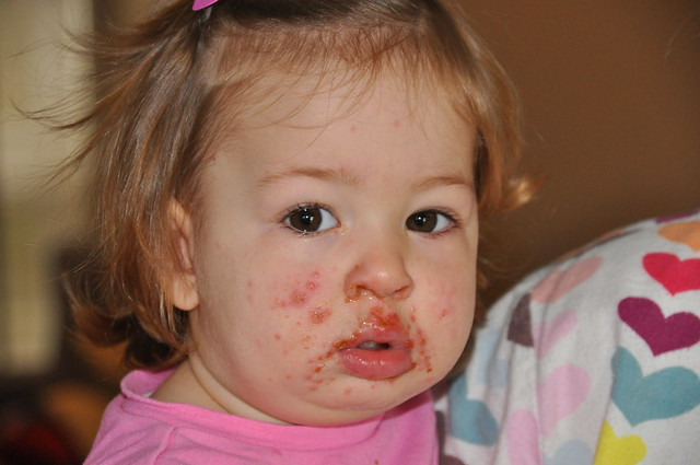 Hand Foot and Mouth Disease Picture Image - eMedicineHealth