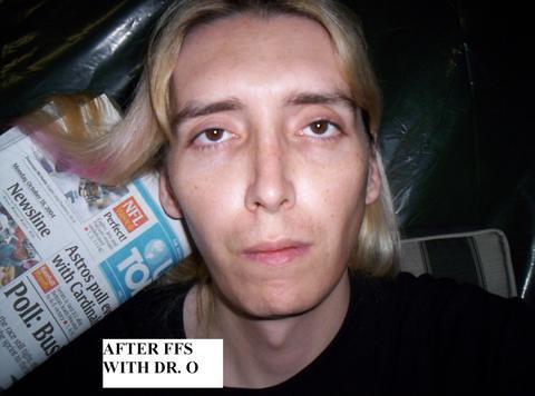 Dr ousterhout facial feminization