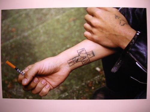Tattoo removal clinics tattoo artist for Tattoo removal az