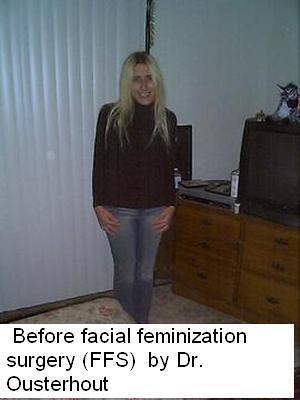 trinity rose before Facial Feminization Surgery dr douglas