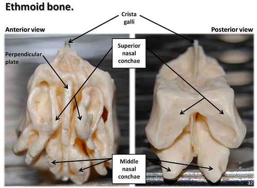Ethmoid bone, anterior and posterior views with labels - Axial Skeleton Visual Atlas, page 32