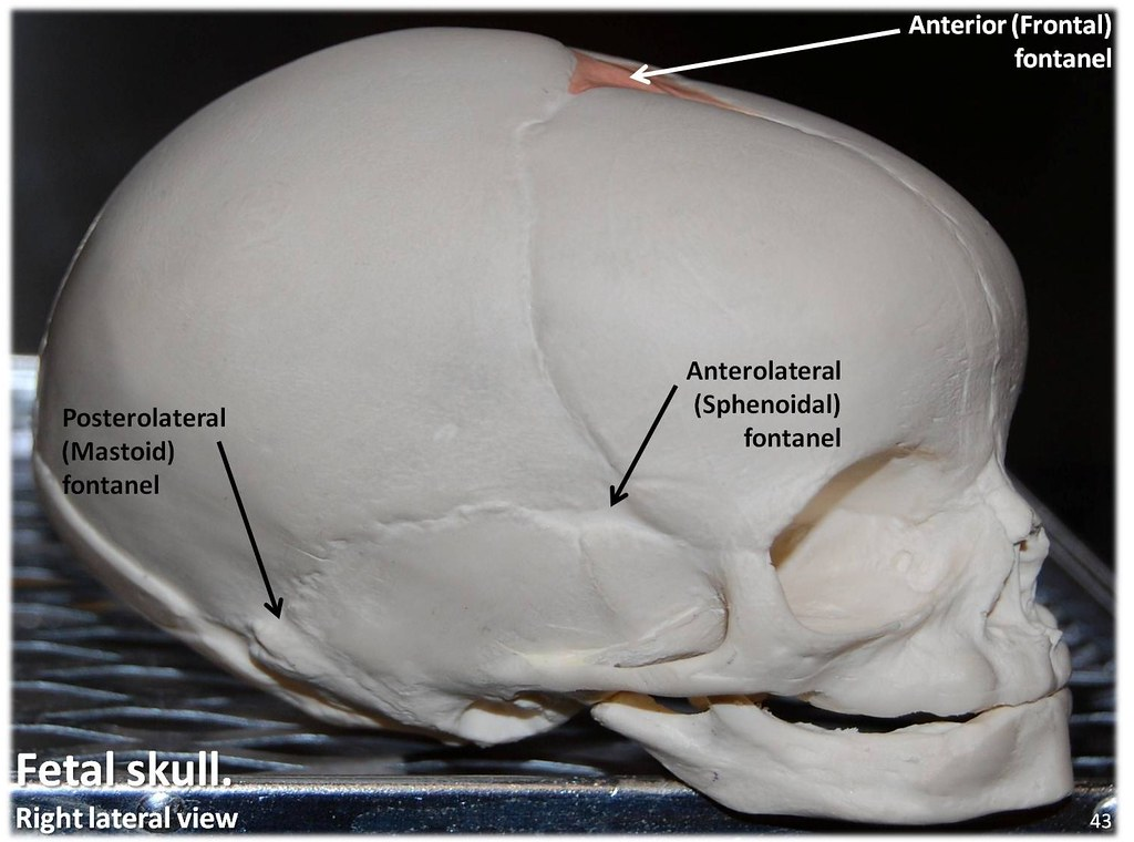 Fetal Skull, lateral view with labels - Axial Skeleton Visual Atlas, page 43