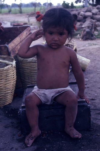 Vietnamese Child 1966 by Dr James Hughes by 7th Surgical Hospital (MA)  Vietnam